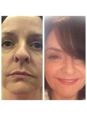 Full face rejuvenation at Julie Pawson Aesthetics - Julie Pawson Aesthetics