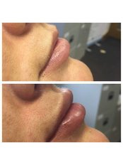 Lip Augmentation at Julie Pawson Aesthetics - Julie Pawson Aesthetics