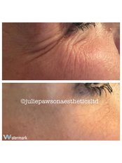 Wrinkle relaxing at Julie Pawson Aesthetics - Julie Pawson Aesthetics