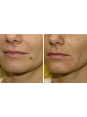 Mole Removal - Perfection Cosmetic Laser & Aesthetic Clinic - Stapleton Ave