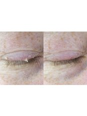 Skin Tag Removal - Perfection Cosmetic Laser & Aesthetic Clinic - Stapleton Ave
