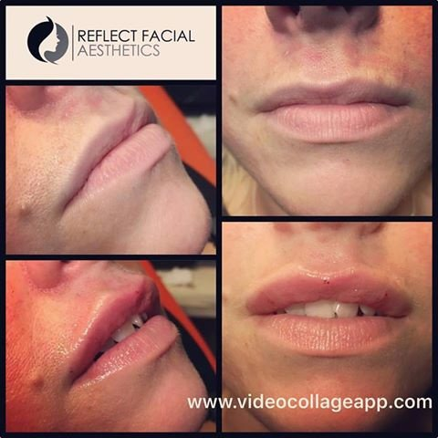 Reflect Facial Aesthetics - Thornton Cleveleys