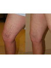 Sclerotherapy - Manchester Vein Clinic
