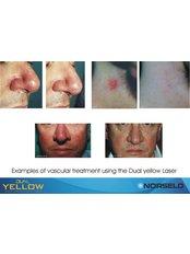 Spider Veins Treatment - Manchester Vein Clinic