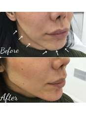 Jaw line  - Dermal Aesthetic Clinic