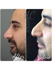 Non-Surgical Nose Job - Dermal Aesthetic Clinic