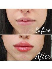 Lip Augmentation  - Dermal Aesthetic Clinic