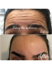 Anti-wrinkles 2 areas  - Dermal Aesthetic Clinic