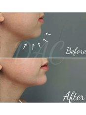 Chin augmentation  - Dermal Aesthetic Clinic
