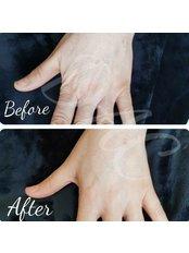 Hand rejuvenation  - Dermal Aesthetic Clinic
