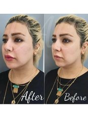 Cheek Augmentation  - Dermal Aesthetic Clinic