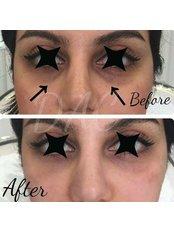 Tear Trough - Dermal Aesthetic Clinic