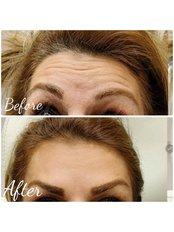 Anti- wrinkles 3 areas  - Dermal Aesthetic Clinic