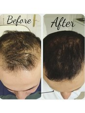 Hair loss plasma therapy including LED light  - Dermal Aesthetic Clinic