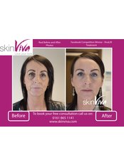 Dermal Fillers - SkinViva Hyde