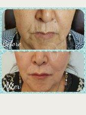 Dermal Aesthetic Clinic - Skin rejivenatio