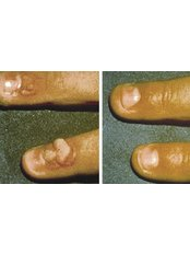 Wart Removal - Perfection Cosmetic Laser & Aesthetic Clinic - Grove Close