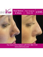 Non-Surgical Nose Job - SkinViva Oldham