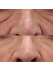 Dermal Fillers - Defyne Aesthetics Skin & Laser Clinic