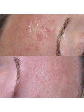 Medical Skin Peels - Defyne Aesthetics Skin & Laser Clinic