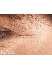 Treatment for Wrinkles  - Defyne Aesthetics Skin & Laser Clinic