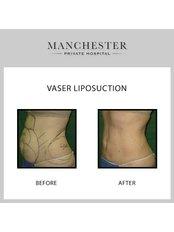 VASER Lipo™ - Manchester Private Hospital
