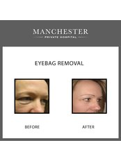 Eyelid surgery - Manchester Private Hospital
