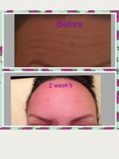 Pure Aesthetics by Zoe - Within Spa  Butterfly @ DW Fitness centre Gym, stadium way, Wigan, Wn50UN,