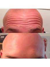 Wrinkle Relaxing Injections - TLC - Leicestershire