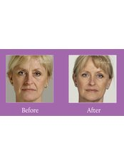 Dermal Fillers - The Laser and Light Cosmetic Medical Clinic
