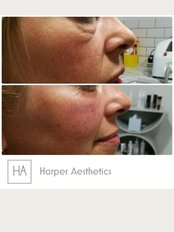 Harper Aesthetics - 157 Weelsby Road, Grimsby, Lincolnshire, DN32 9RX,