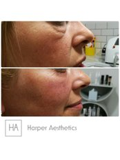 Harper Aesthetics - 157 Weelsby Road, Grimsby, Lincolnshire, DN32 9RX,  0