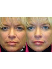 Radiesse™ / Radiance™ Filler - Advanced Beauty Clinic