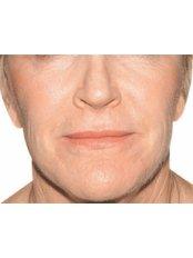 Juvéderm™ Filler - Advanced Beauty Clinic