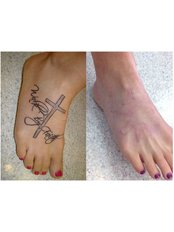 Tattoo Removal - La Beaute Medical Center