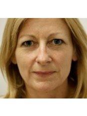 Dermal Fillers - Cosmedics Skin Clinics - Harley Street