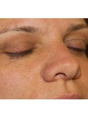 Skin Tag Removal - Cosmedics Skin Clinics - Harley Street