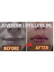 Lip Augmentation 1ml - London Lip Clinic