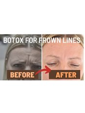 Treatment for Lines and Wrinkles - London Lip Clinic