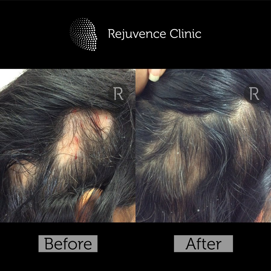 Rejuvence Clinic in Limehouse • Read 3 Reviews