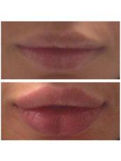 Lip Augmentation - London Medical Health