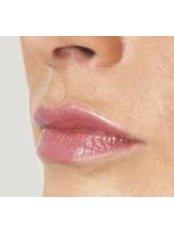 Lip Augmentation - Cosmedics Skin Clinics Putney