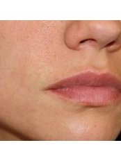 Mole Removal - Cosmedics Skin Clinics Putney