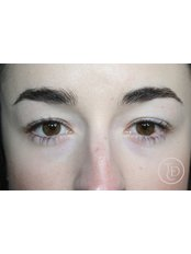 Permanent Eyeliner - The Dermatography Clinic