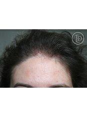 Scalp Micropigmentation - The Dermatography Clinic
