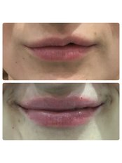 Lip Augmentation - Radiant Aesthetics