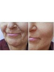 Nasolabial Folds Treatment - Radiant Aesthetics