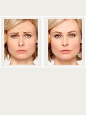 Dr Anna Hemming - Wrinkle treatment to the frown and forehead