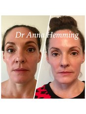Cheek Augmentation From - Dr Anna Hemming