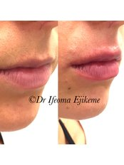 Dermal Fillers - Adonia Medical Clinic